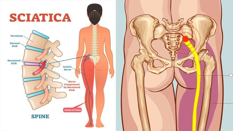 sciatica-1-image